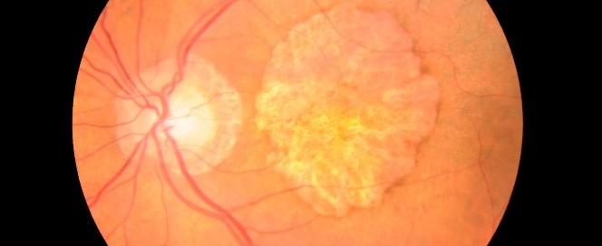 Degeneración macular: Qué es, tratamiento, causas sobre DMAE - Vissum