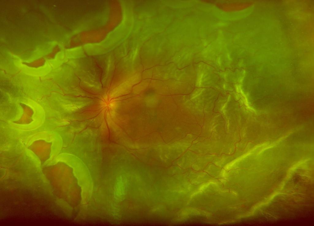 Desprendimiento de retina: sintomas, causas, operación, tratamiento