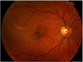 Membrana epirretiniana: Qué es, causas, tratamiento cirugía - Vissum