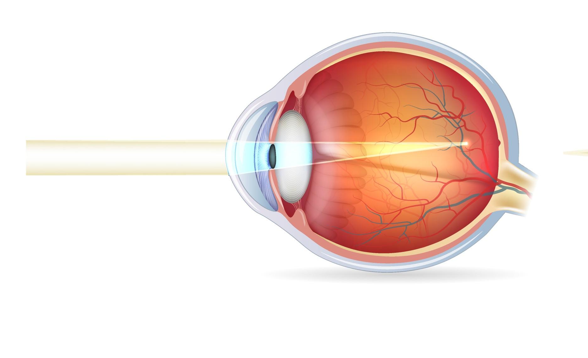 Miopía: Que es, causas, tratamiento, cirugia y tipos de miopia