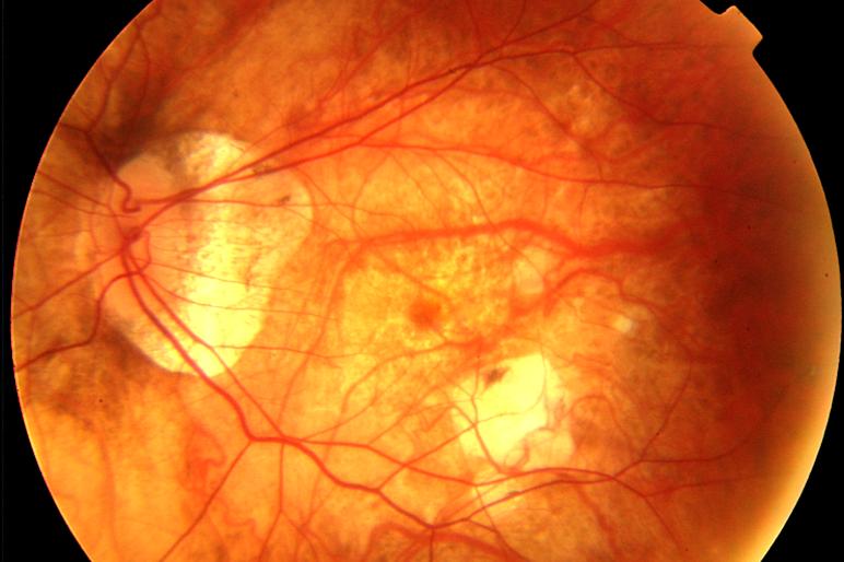 Miopía magna: Qué es, síntomas, operacion y tratamiento - Vissum