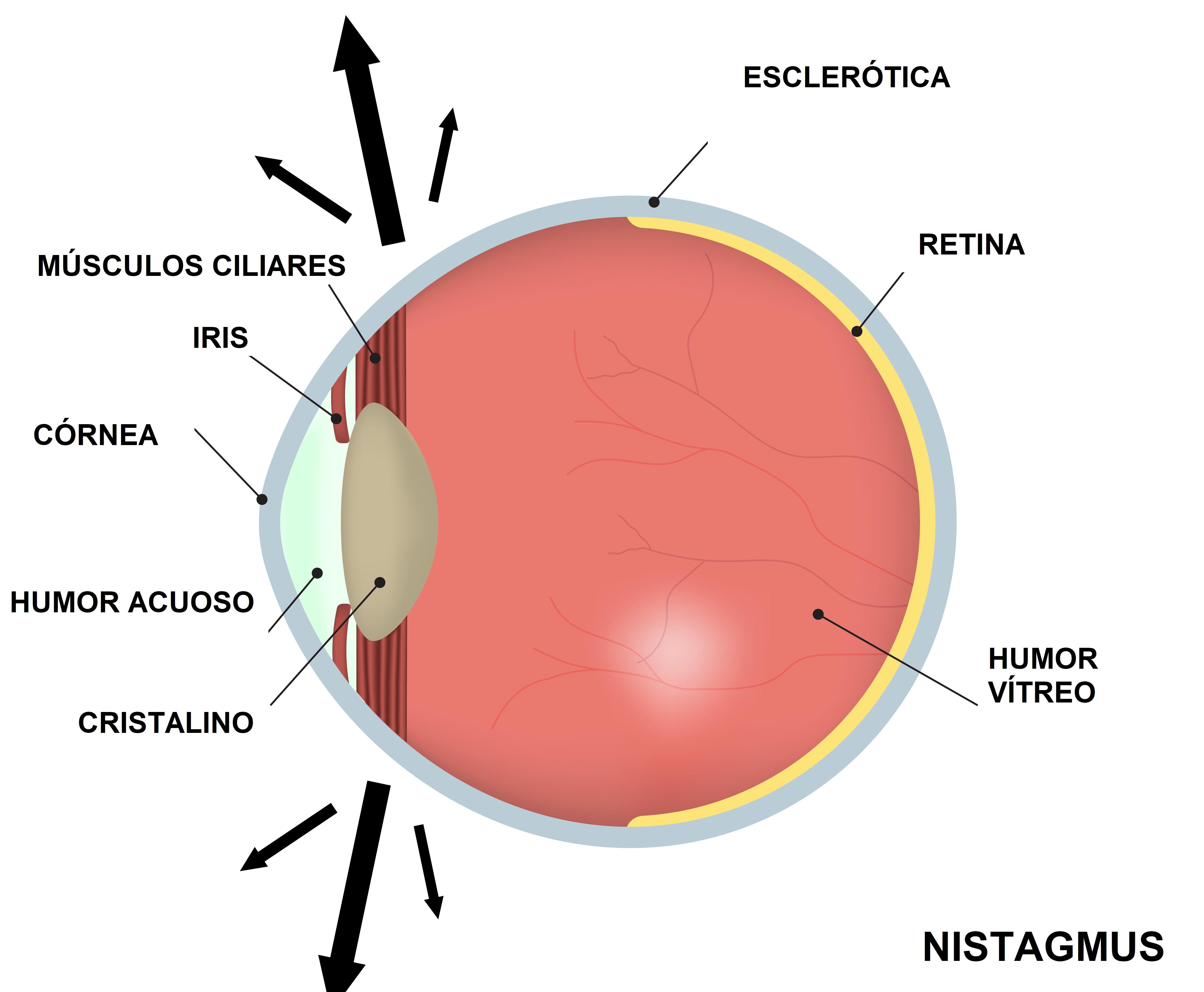 Nistagmo: Qué es, causas, tratamiento, cirugía y operacion de nistagmo
