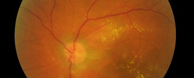 Uveítis: Que son, tratamiento, causas, síntomas - Vissum