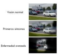 Jornada de puertas abiertas en VISSUM el Día Mundial del Glaucoma