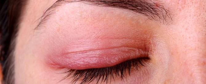 Blefaritis inflamación de párpado