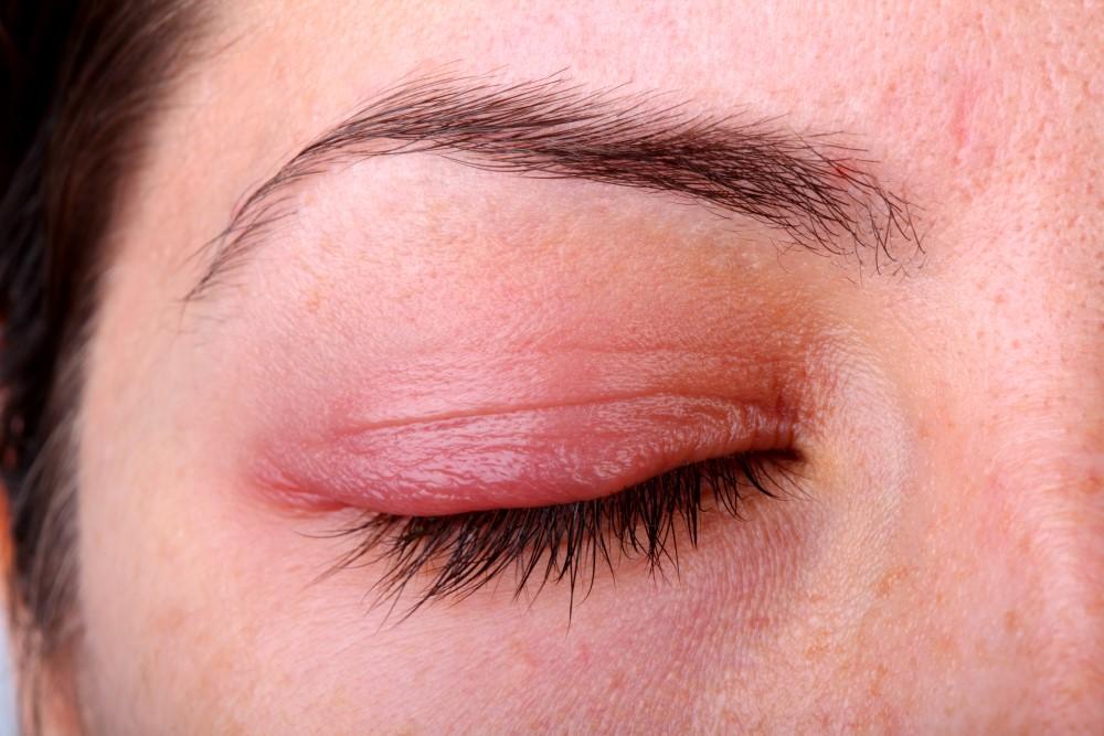 Blefaritis: Qué es, síntomas y tratamiento de la Blefaritis - Vissum