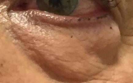 Bolsas en los ojos: Operacion, cirugía, tratamiento de dermatocalasia
