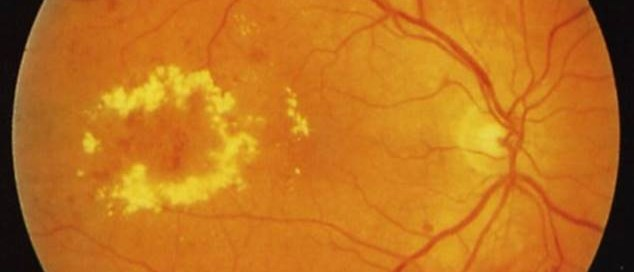 Edema macular: Qué es, tratamiento, causas del edema macular - Vissum