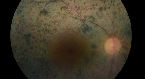 Retinosis pigmentaria: Qué es, tratamiento, sintomas, causas, cirugía