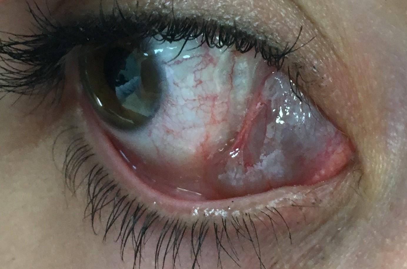 Lesiones y tumores orbitarios - Enfermedades de los ojos - Vissum