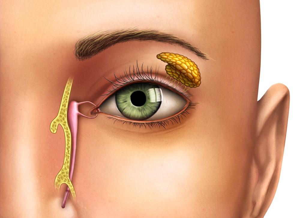 Obstrucción de vías lacrimales: Qué es, causas y cirugía - Vissum