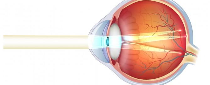 Astigmatismo: Qué es, síntomas y tratamiento del astigmatismo - Vissum