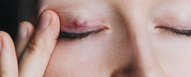 Chalación: Qué es, tratamiento y operación del Chalación - Vissum