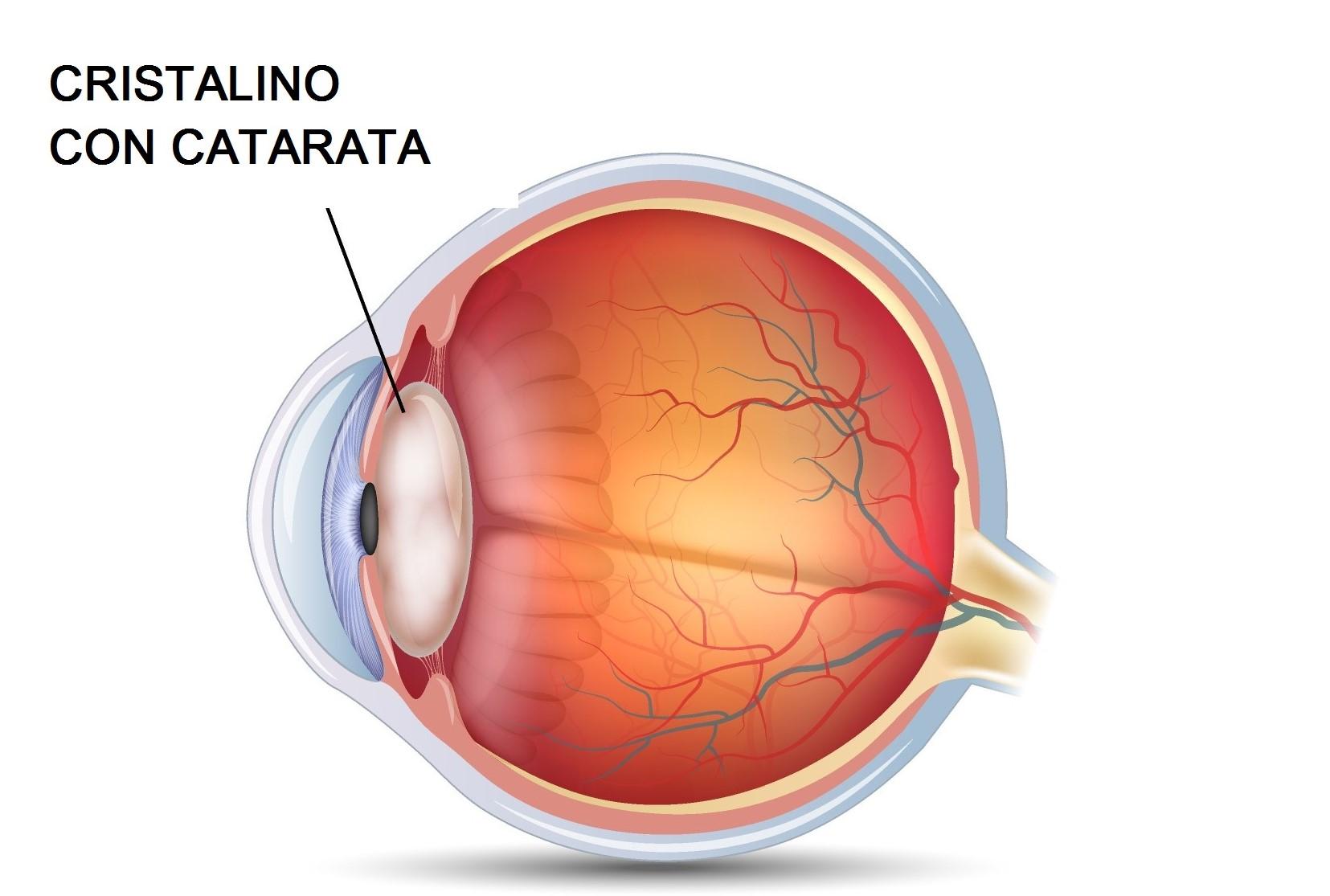catarata del ojo