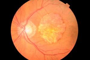 Fumar daña seriamente la retina