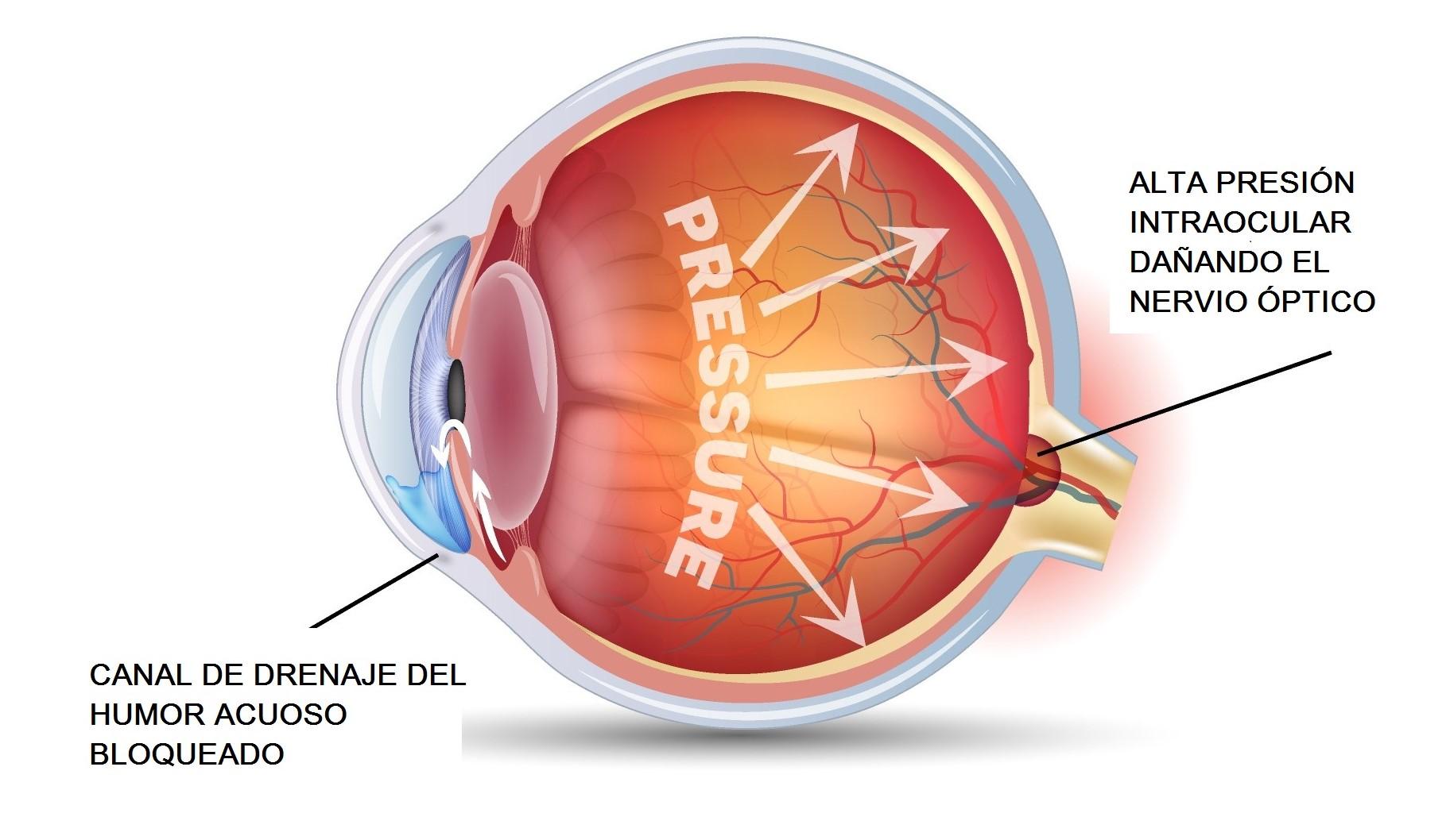 Glaucoma: Qué es, tratamiento, causas, operación, cirugía glaucoma