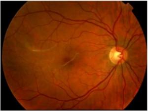 Superalimentos contra la degeneración macular asociada a la edadMembranas Epirretinianas