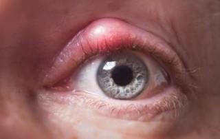 Orzuelo: Qué es, tratamiento, causas, cirugía del orzuelo - Vissum