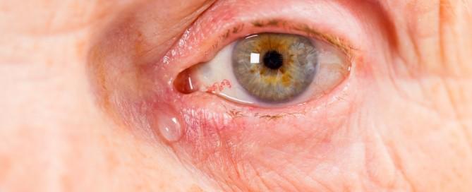 Lagrimeo, Epífora u Ojo Lloroso: Qué es, causas, tratamiento y cirugía