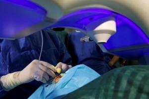El nuevo láser Smile: Última técnica en operaciones de miopía y astigmatismo