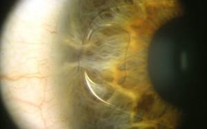 Lentes intraoculares faquicas2