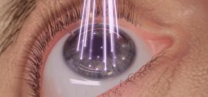 Las intervenciones con láser pueden sustituir tus gafas.