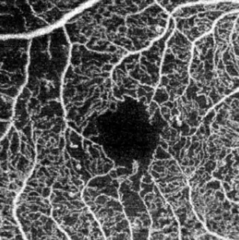 retina vista con tecnología Angio- OCT