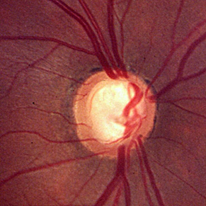 tratamiento del glaucoma