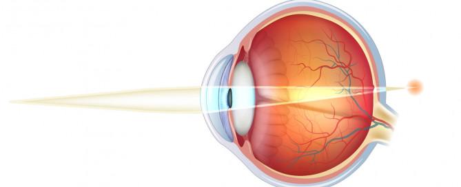 Hipermetropía: Qué es , operación, cirugía, tratamiento hipermetropía