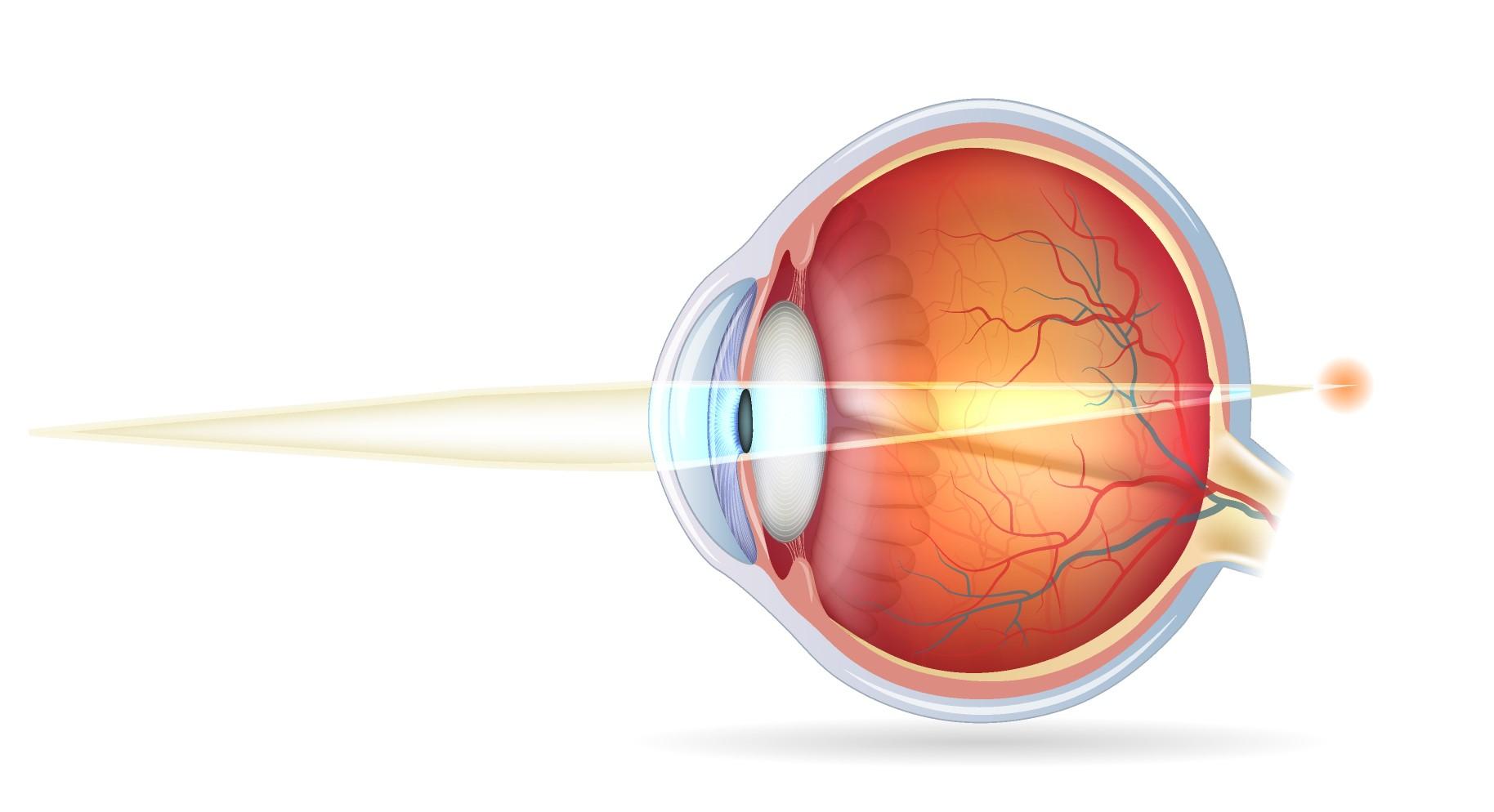 217d32bc9d Hipermetropía - Enfermedades de los ojos - Vissum