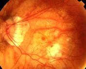 Miopia-magna-patologica