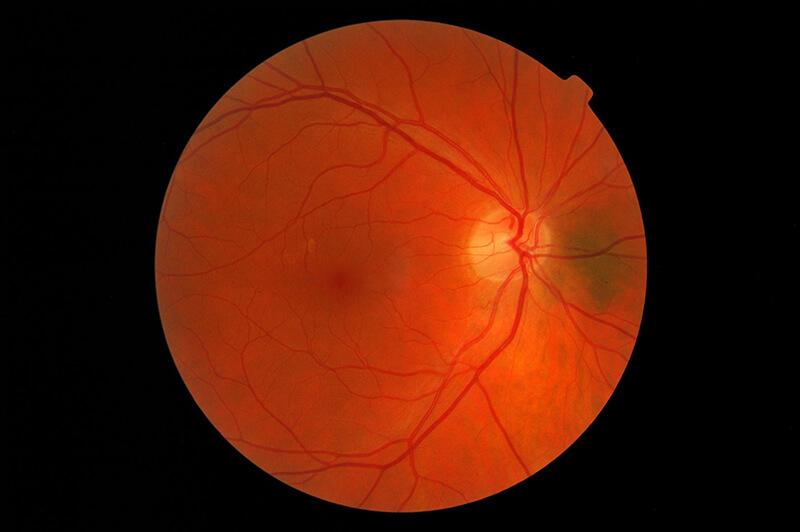 alta miopía y desprendimiento de retina