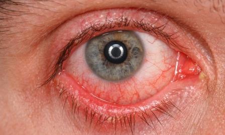 Los ojos rojos son un signo de multitud de patologías.