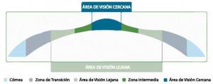 La técnica láser PresbiMax, una solución para todas las distancias.