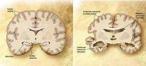Comparativa entre un cerebro sano y uno con la enfermedad de Alzheimer