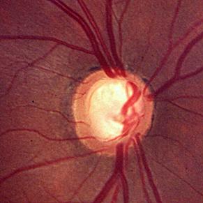 Captura de una de las pruebas realizadas para la detección del Glaucoma