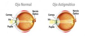Representación gráfica del astigmatismo miópico