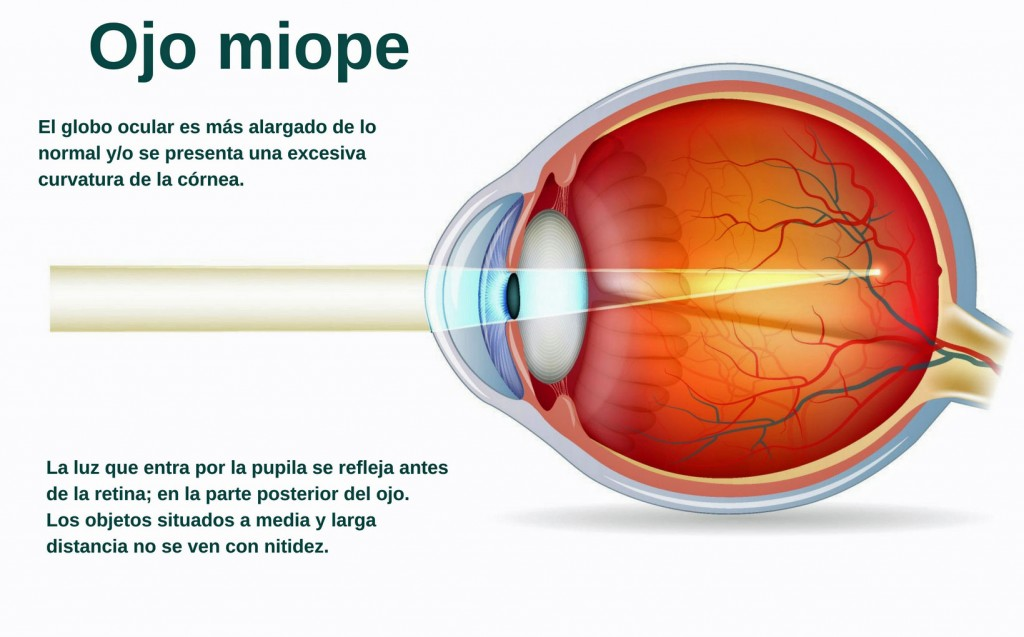 ojo miope